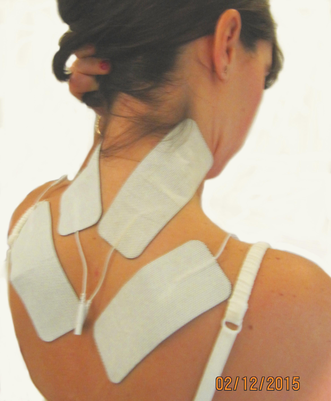 Position des électrodes remontant sur les faces latérales de la nuque, assurant les résultats du traitement par le MCR